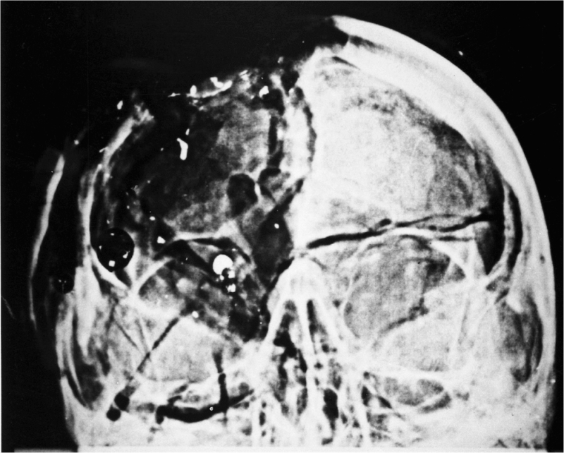 The State of Texas vs Lee Harvey Oswald: The JFK Autopsy Skull X-rays